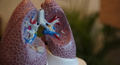 AstraZeneca, Qure.ai to bring AI solutions to detect lung cancer