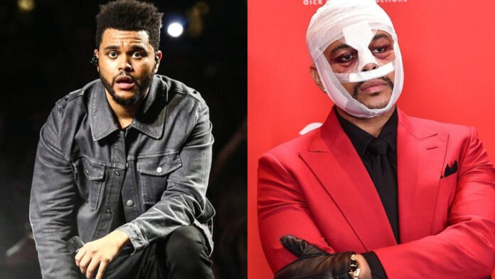 Here's why The Weeknd wore face bandages last year