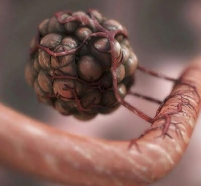 Gallbladder, biliary tract cancer cases up 76% in 3 decades