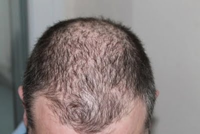 Hair loss is new post Covid complication: Doctors